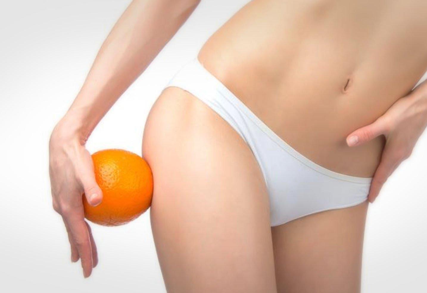 Борьба с целлюлитом – пять действенных средств